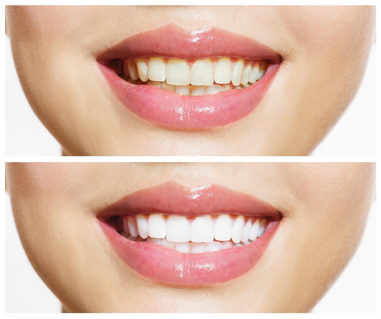 Sbiancamento denti LED professionale Milano: dentista o kit fai-da-te?