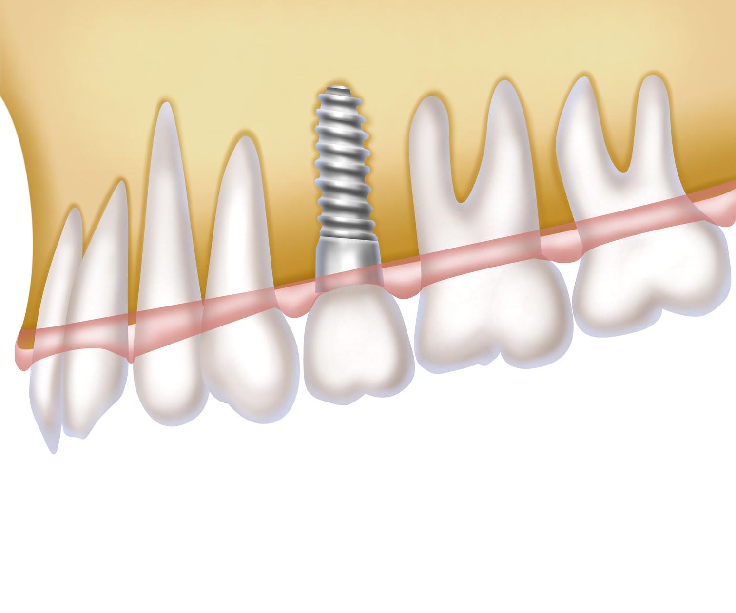 Impianti dentali: cosa sono e come vengono effettuati